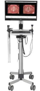 videostroboscopy